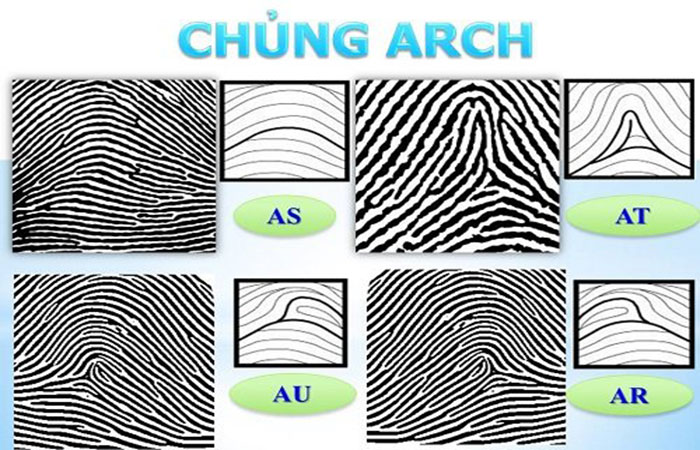 Chủng Arch